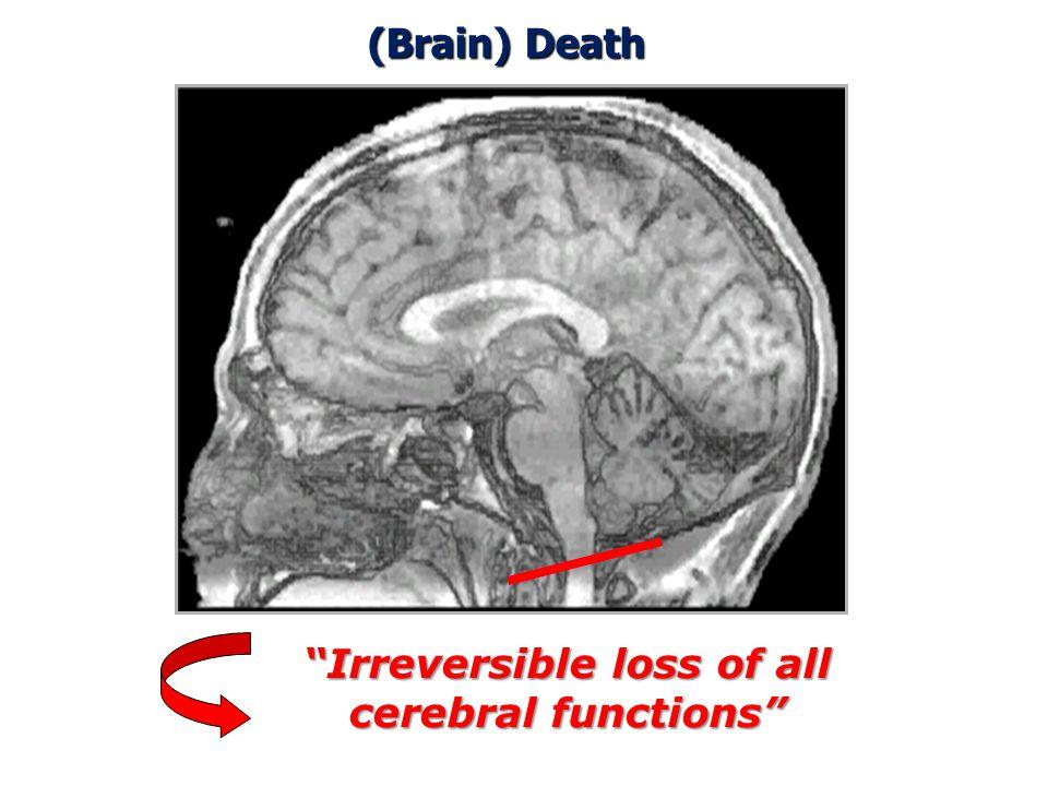 Harvard Criteria - 1968 The Neurological Standard 16