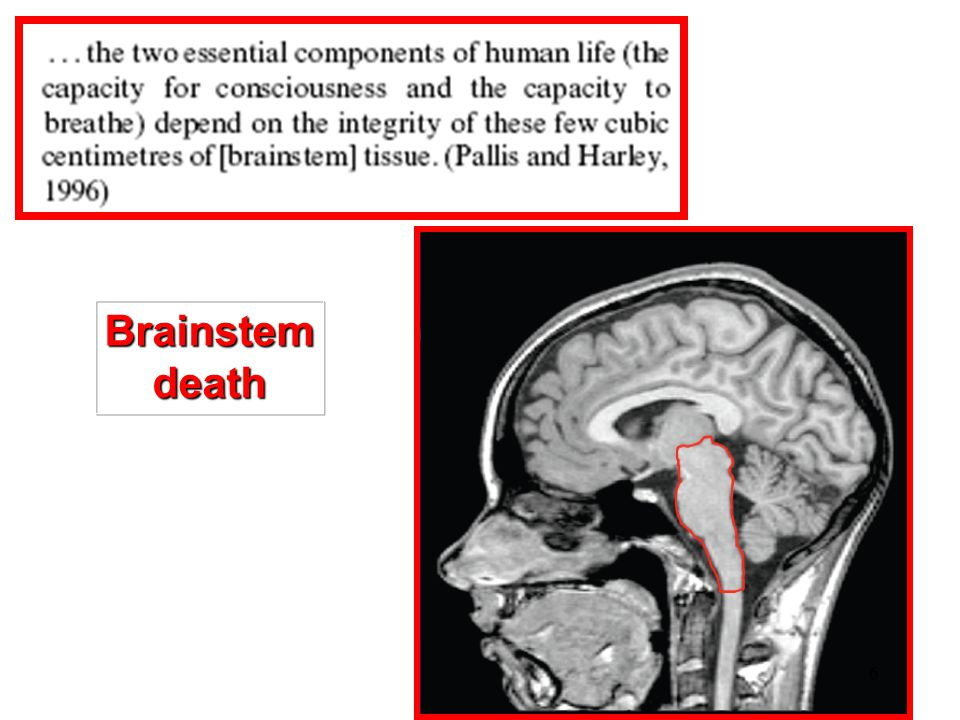 Why Brain death is the only death ? Pathophysiological reasons 7