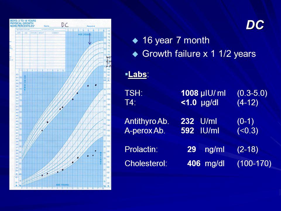 DC u 16 year 7 month u Growth failure x 1 1/2 years  Labs  Labs: TSH: 1008 µIU/ ml(0.3-5.0) T4: <1.0 µg/dl(4-12) Antithyro Ab. 232 U/ml(0-1) A-perox