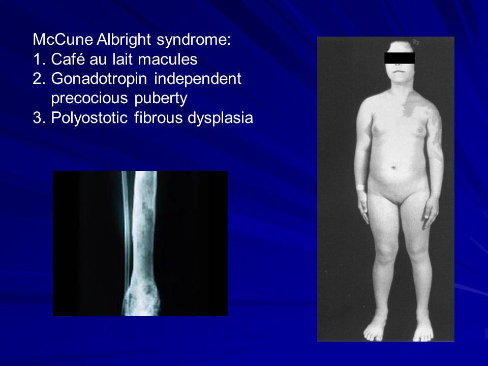 McCune Albright syndrome: 1.Café au lait macules 2.Gonadotropin independent precocious puberty 3.Polyostotic fibrous dysplasia