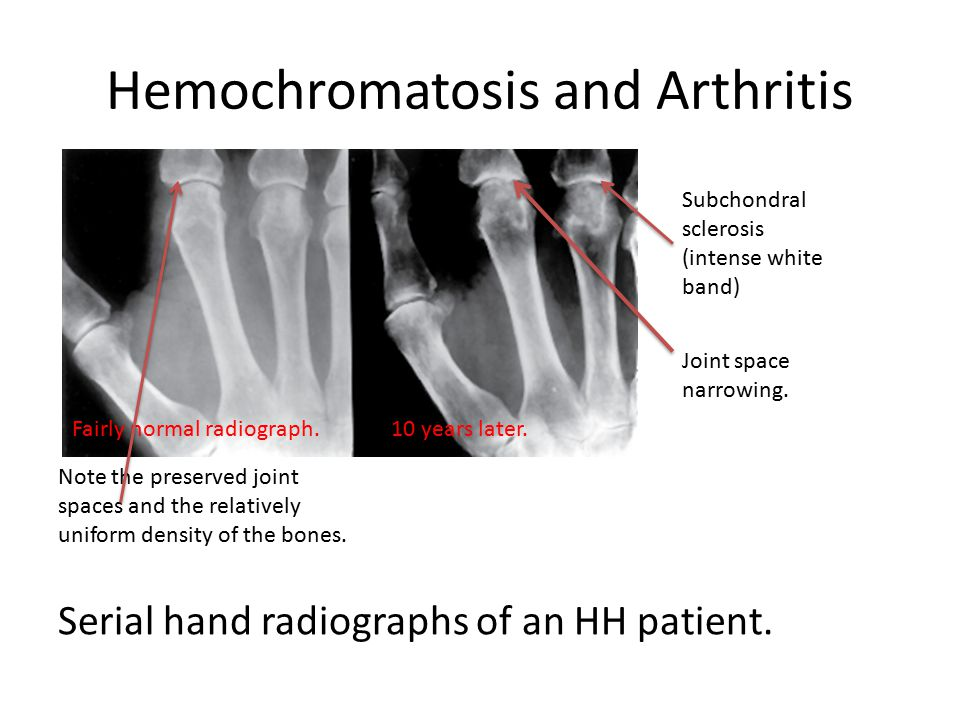 Hemochromatosis and Arthritis Serial hand radiographs of an HH patient.