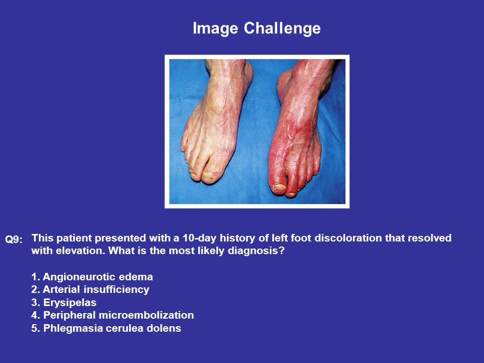 Image Challenge This patient presented with a 10-day history of left foot discoloration that resolved with elevation.