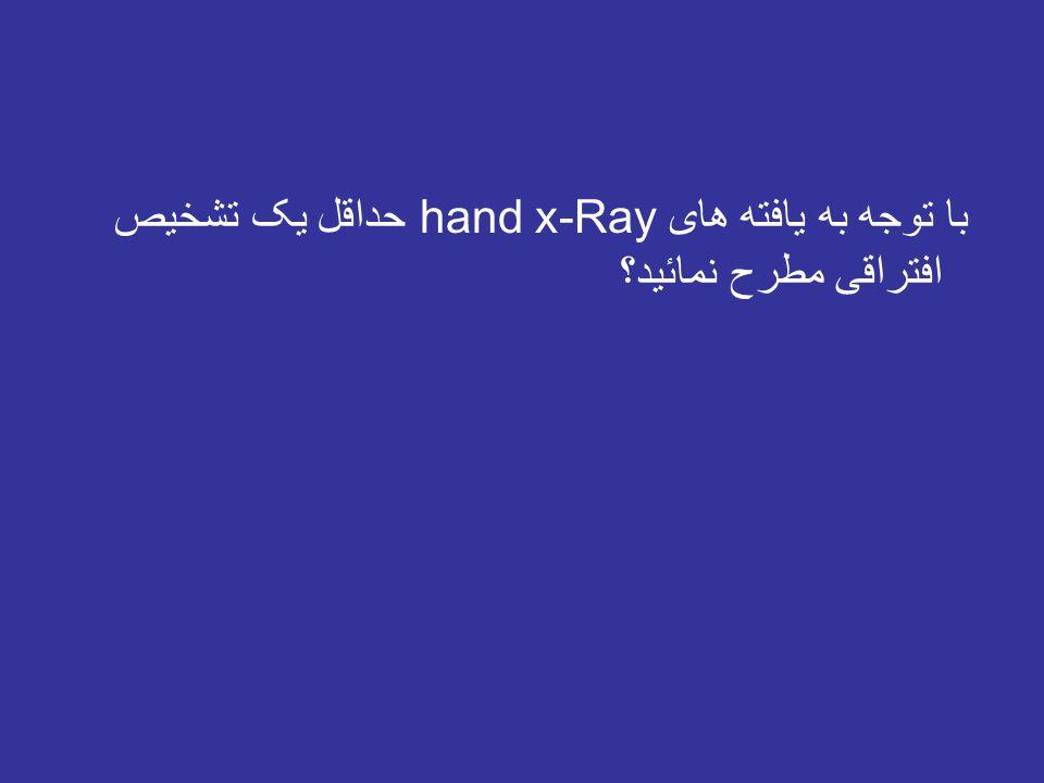 با توجه به یافته های hand x-Ray حداقل یک تشخیص افتراقی مطرح نمائید؟