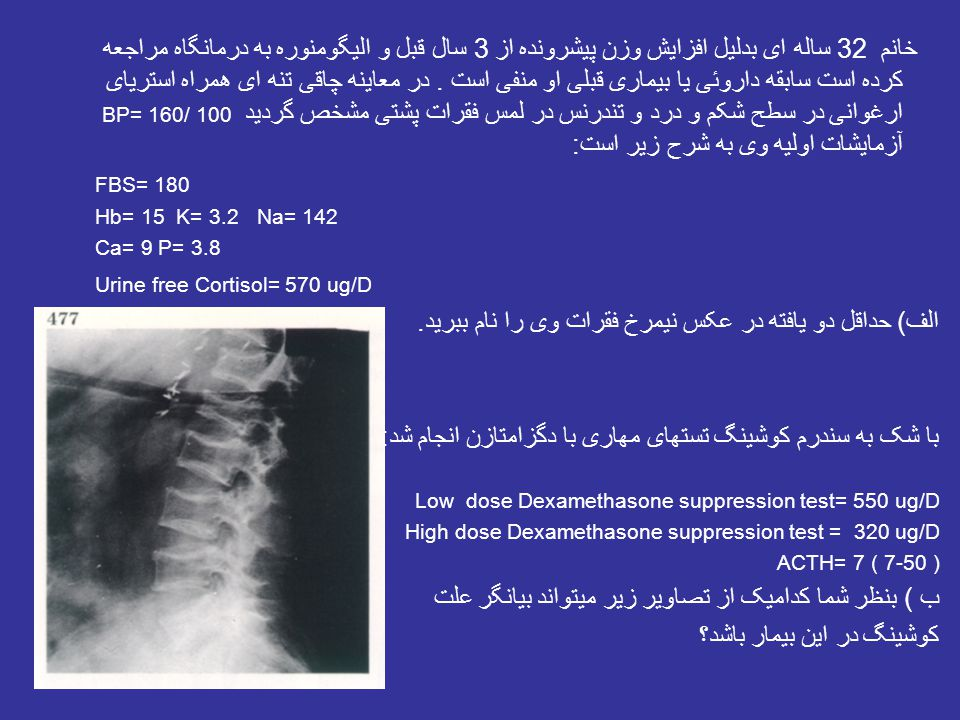 Image Challenge This patient developed jaundice and an enlarging neck mass.