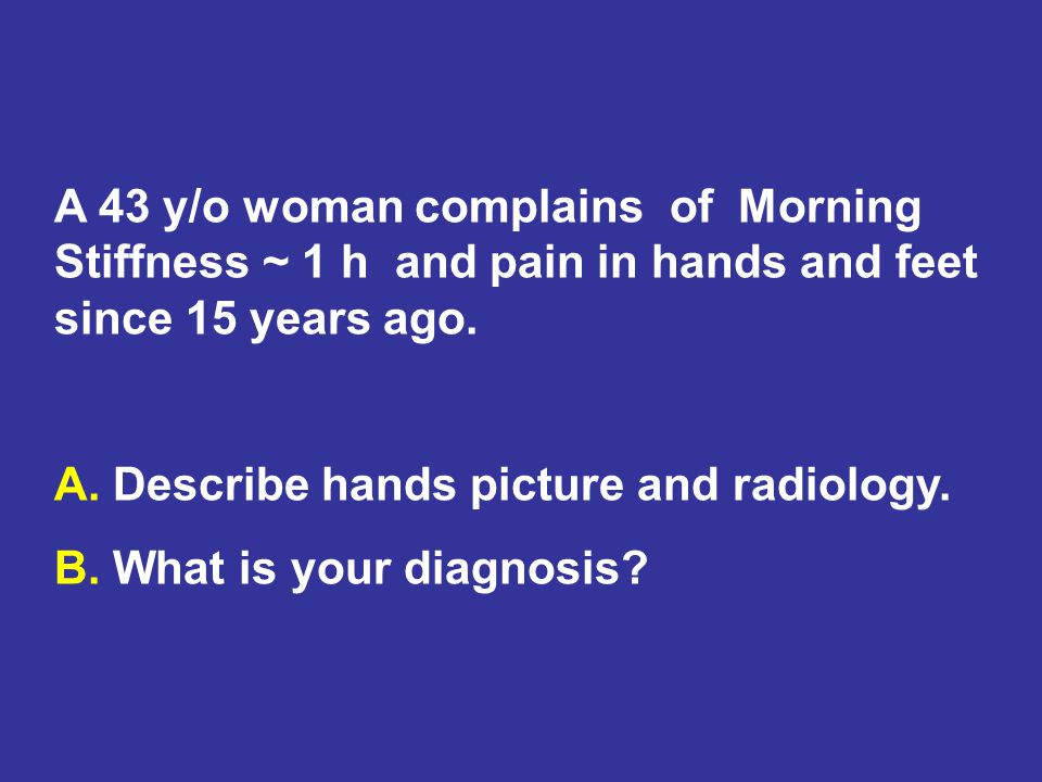 A 43 y/o woman complains of Morning Stiffness ~ 1 h and pain in hands and feet since 15 years ago.