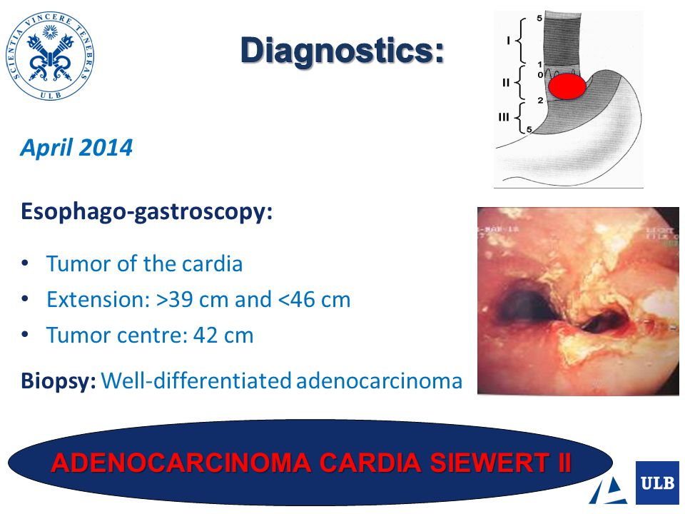 ESOPHAGEAL SCANNER (16/04/14): Thickening of the lower esophagus and the lesser curvature of the stomach.