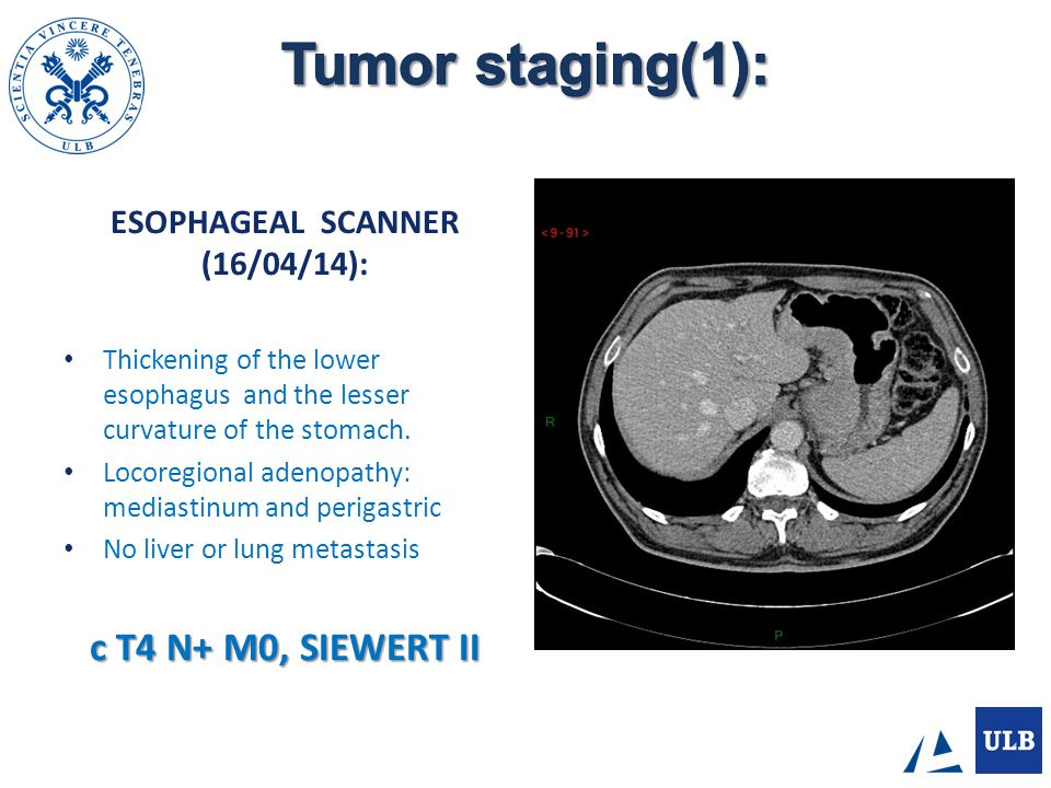 PET/CT (18/04/14): Hyper metabolic lesion of the cardia Metastatic lymphadenopathy of lesser curvature