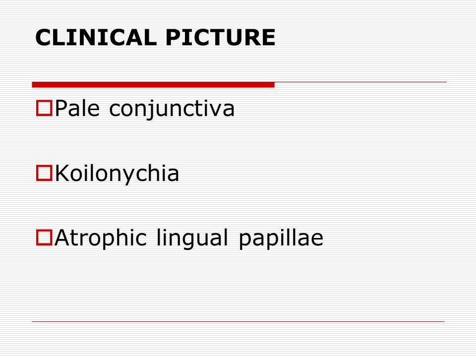 CLINICAL PICTURE  Pale conjunctiva  Koilonychia  Atrophic lingual papillae