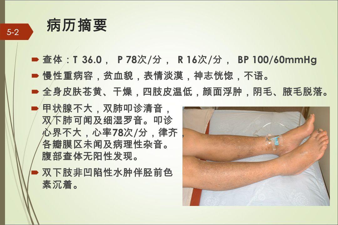 病 历 摘要  查 体 : T 36.0 , P 78 次 / 分 , R 16 次 / 分 , BP 100/60mmHg  慢性重病容 ,贫 血貌 , 表情淡漠 , 神志恍惚 , 不 语。  全身皮肤 苍 黄 、 干燥 , 四肢皮温低 ,颜 面浮 肿, 阴毛 、 腋毛脱落 。 5-2  甲状腺不大 , 双肺叩 诊 清音 , 双下肺可 闻 及 细 湿 罗 音 。 叩 诊 心界不大 , 心率 78 次 / 分 , 律 齐, 各瓣膜区未 闻 及病理性 杂 音 。 腹部 查 体无阳性 发现。  双下肢非凹陷性水 肿 伴 胫 前色 素沉着 。