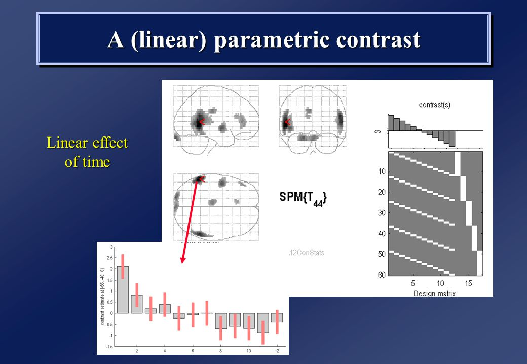 A (linear) parametric contrast Linear effect of time