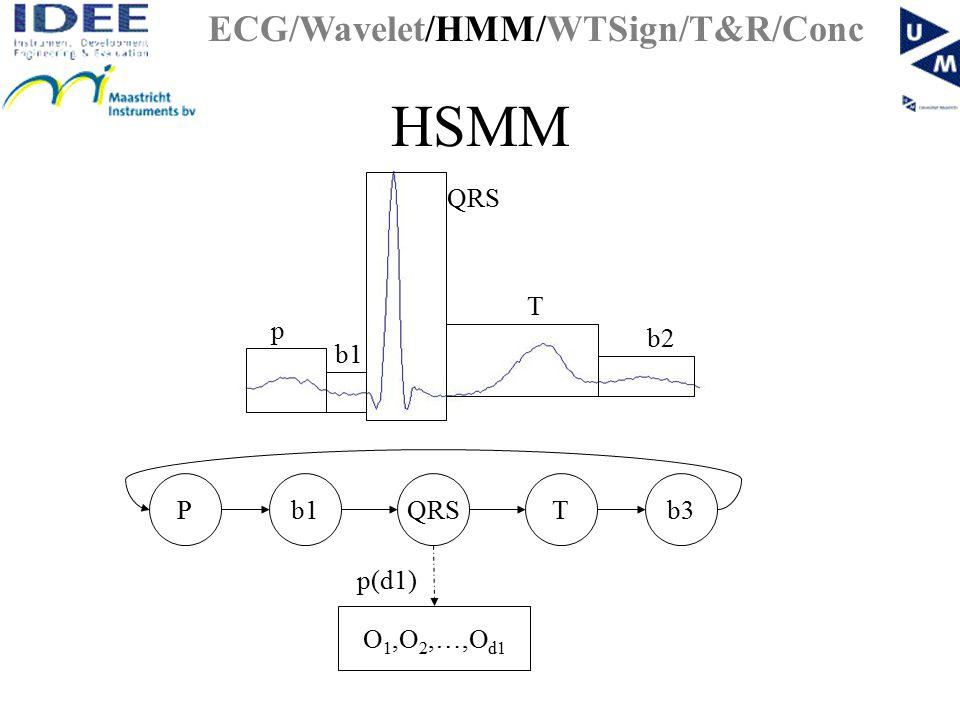 HSMM b1TQRSPb3 O 1,O 2,…,O d1 p(d1) ECG/Wavelet/HMM/WTSign/T&R/Conc p QRS T b2 b1