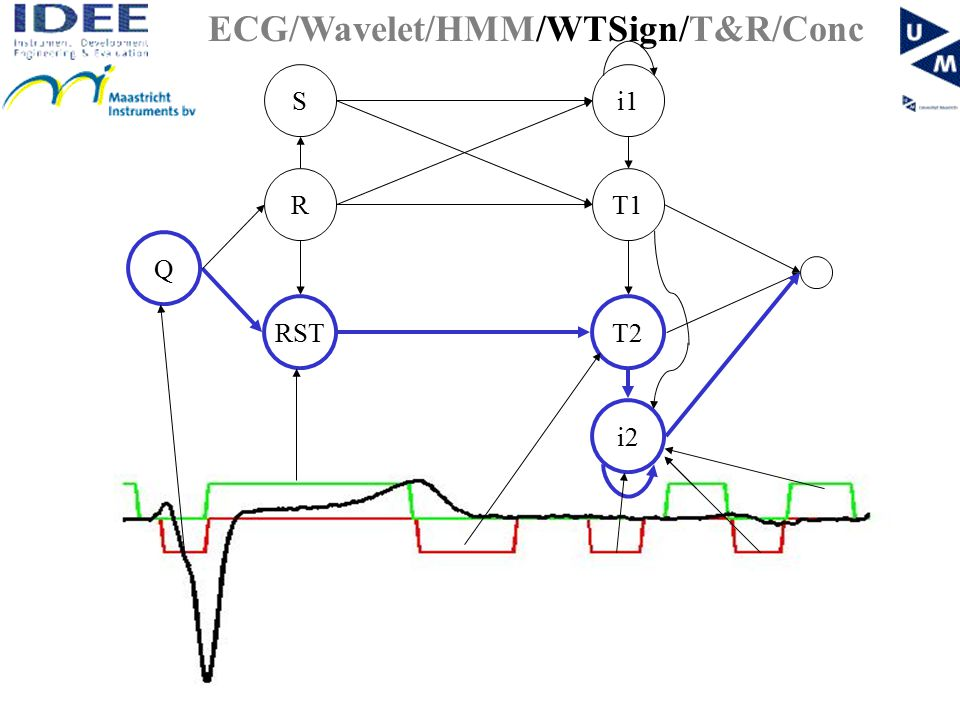 RST T1R Q i1S T2 i2 ECG/Wavelet/HMM/WTSign/T&R/Conc