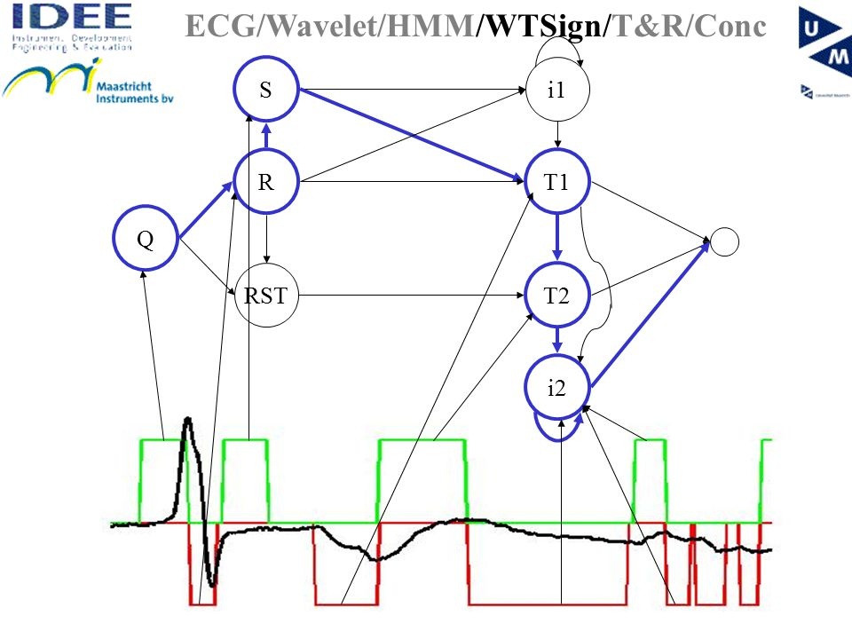 RST T1R Q i1 S T2 i2 ECG/Wavelet/HMM/WTSign/T&R/Conc
