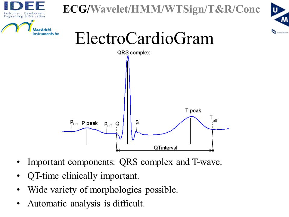 ElectroCardioGram Important components: QRS complex and T-wave.