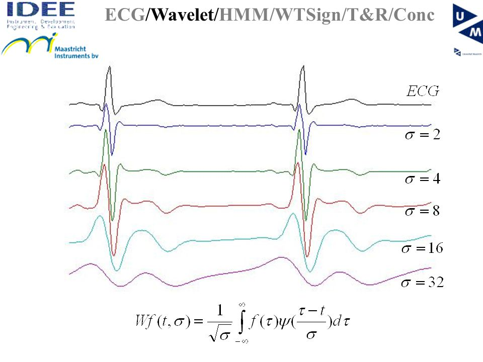 WT based methods Wavelet Transform Modulus Maxima Method –Use the local modulus maxima (MM) in WT to detect ECG peaks –QRS = positive MM followed by negative MM –Features WT Amplitude MM Lipschitz exponent (measure for regularity signal).