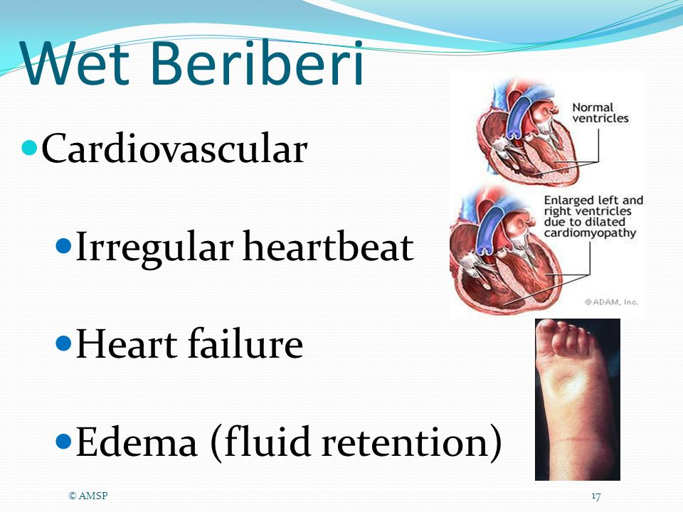 Wet Beriberi © AMSP 17 Cardiovascular Irregular heartbeat Heart failure Edema (fluid retention)