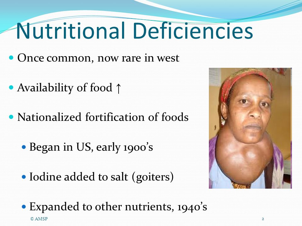 Nutritional Deficiencies Once common, now rare in west Availability of food ↑ Nationalized fortification of foods Began in US, early 1900's Iodine added to salt (goiters) Expanded to other nutrients, 1940's © AMSP 2