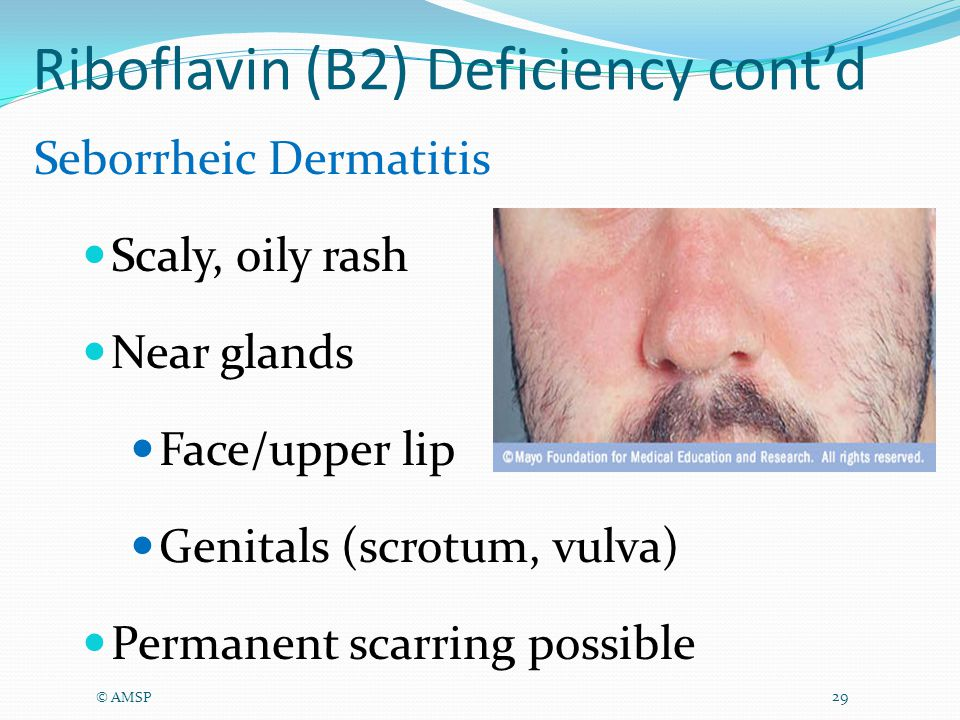 Riboflavin (B2) Deficiency cont'd © AMSP 29 Seborrheic Dermatitis Scaly, oily rash Near glands Face/upper lip Genitals (scrotum, vulva) Permanent scarring possible