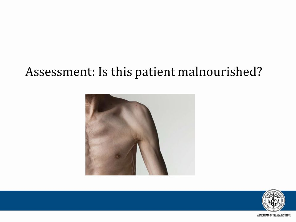 Assessment: Is this patient malnourished?