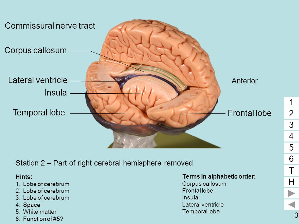 3 Station 2 – Part of right cerebral hemisphere removed Terms in alphabetic order: Corpus callosum Frontal lobe Insula Lateral ventricle Temporal lobe