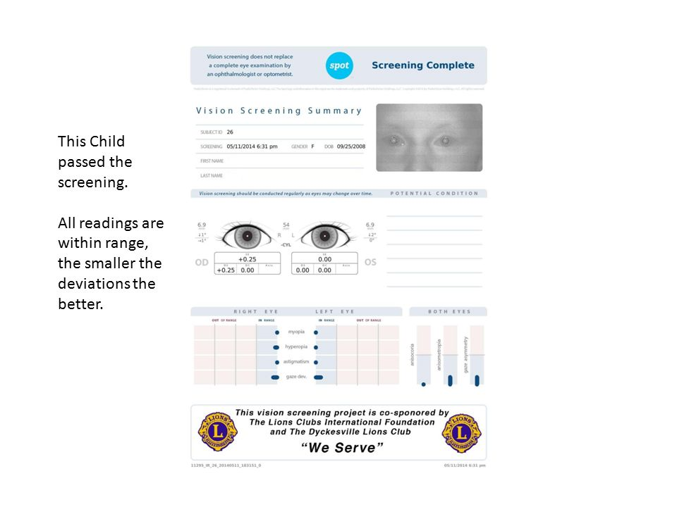 This Child passed the screening. All readings are within range, the smaller the deviations the better.