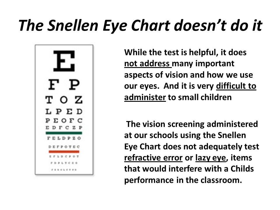 Same child with glasses, the correction is bringing the astigmatism correction within range for both eyes.