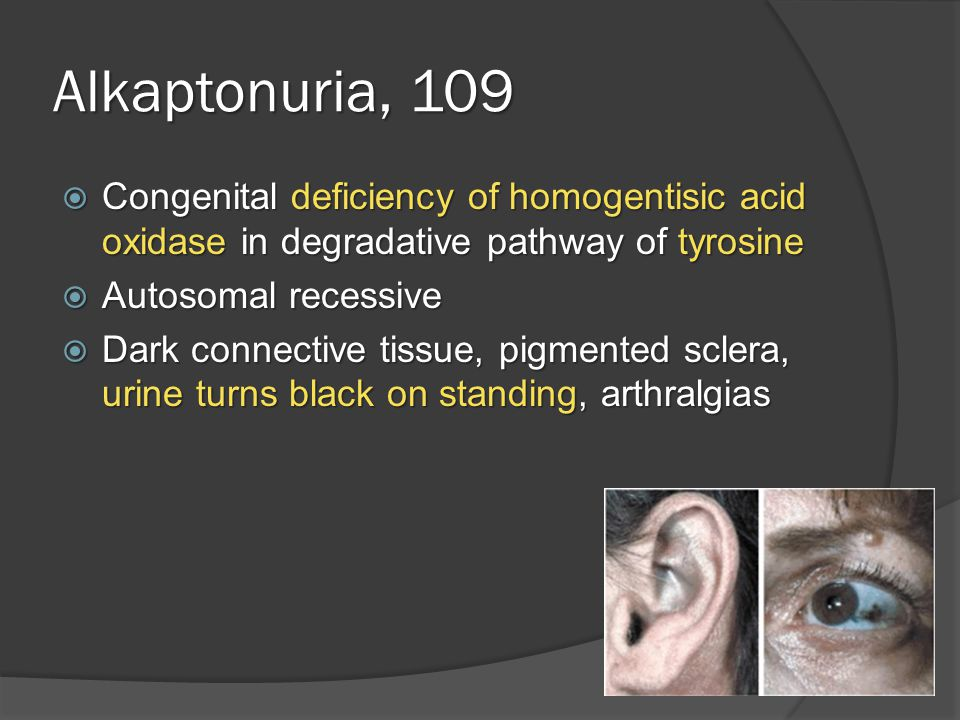 Alkaptonuria, 109  Congenital deficiency of homogentisic acid oxidase in degradative pathway of tyrosine  Autosomal recessive  Dark connective tissue, pigmented sclera, urine turns black on standing, arthralgias