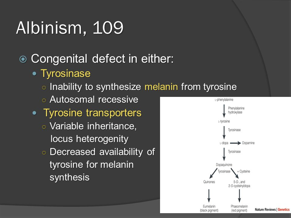 Albinism, 109  Congenital defect in either: Tyrosinase Tyrosinase ○ Inability to synthesize melanin from tyrosine ○ Autosomal recessive Tyrosine transporters Tyrosine transporters ○ Variable inheritance, locus heterogenity ○ Decreased availability of tyrosine for melanin synthesis