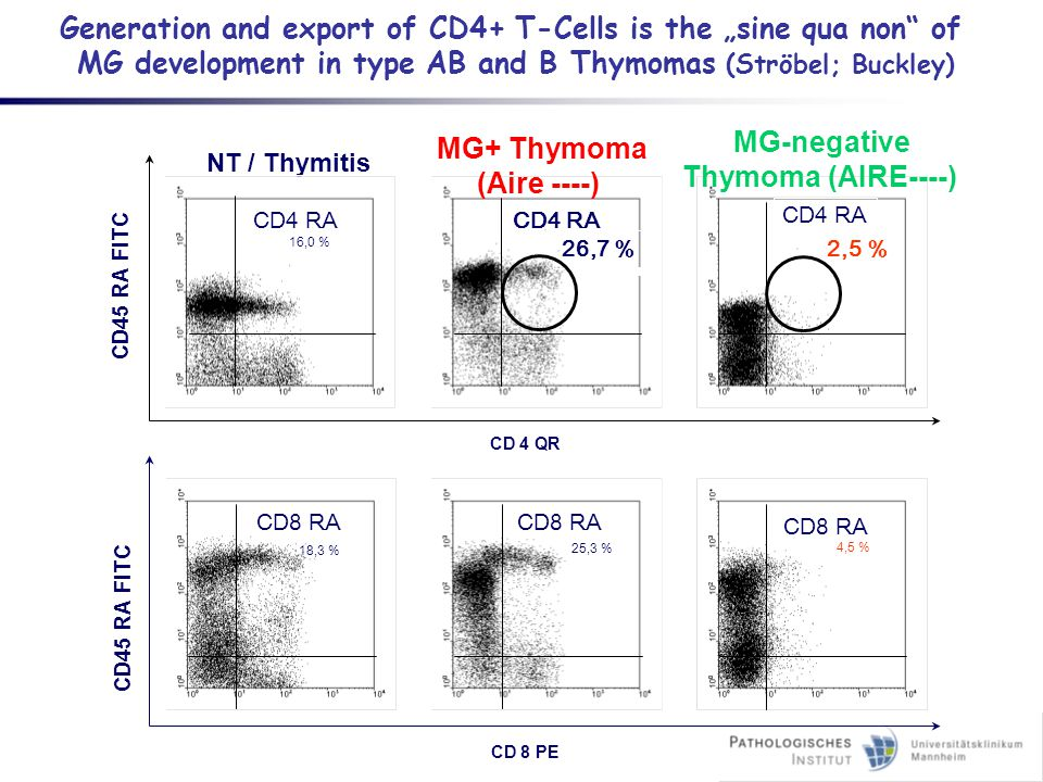 "Generation and export of CD4+ T-Cells is the ""sine qua non"" of MG development in type AB and B Thymomas (Ströbel; Buckley) CD45 RA FITC NT / Thymitis"