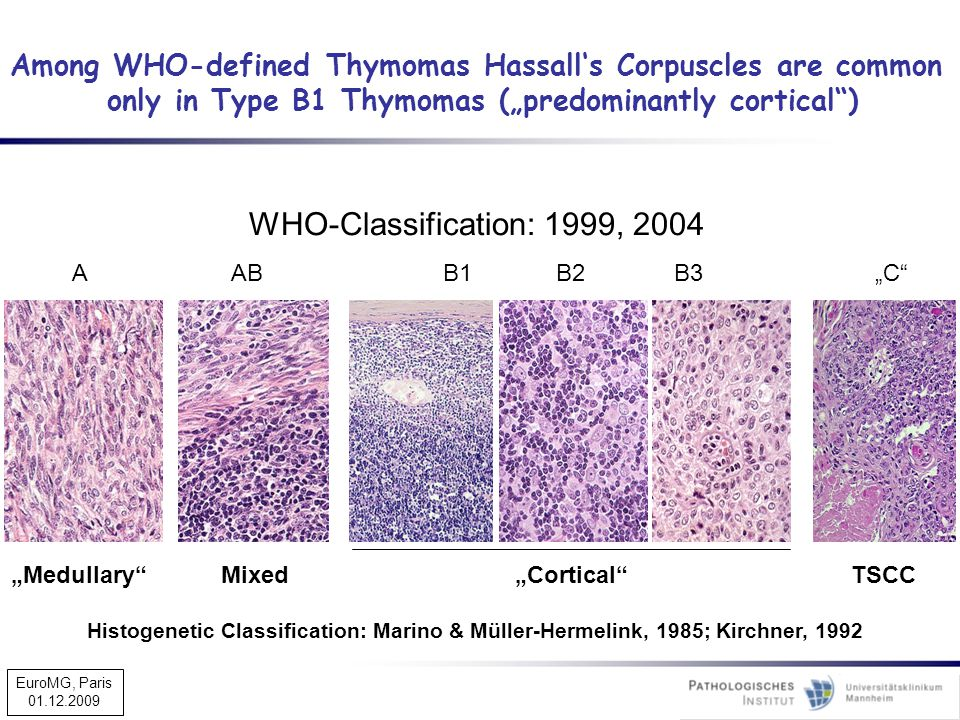 "AABB1B2B3""C"" ""Medullary""Mixed""Cortical""TSCC Among WHO-defined Thymomas Hassall's Corpuscles are common only in Type B1 Thymomas (""predominantly cortic"