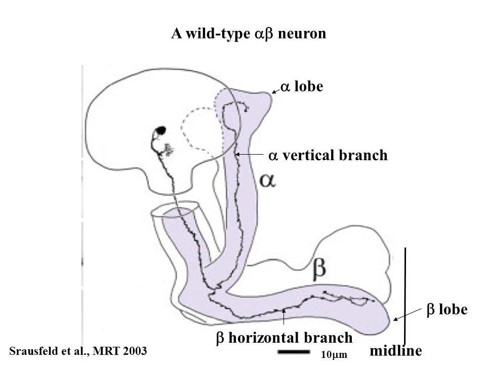 midline  horizontal branch Srausfeld et al., MRT 2003 10  m A wild-type  neuron  vertical branch 10  m  lobe  lobe