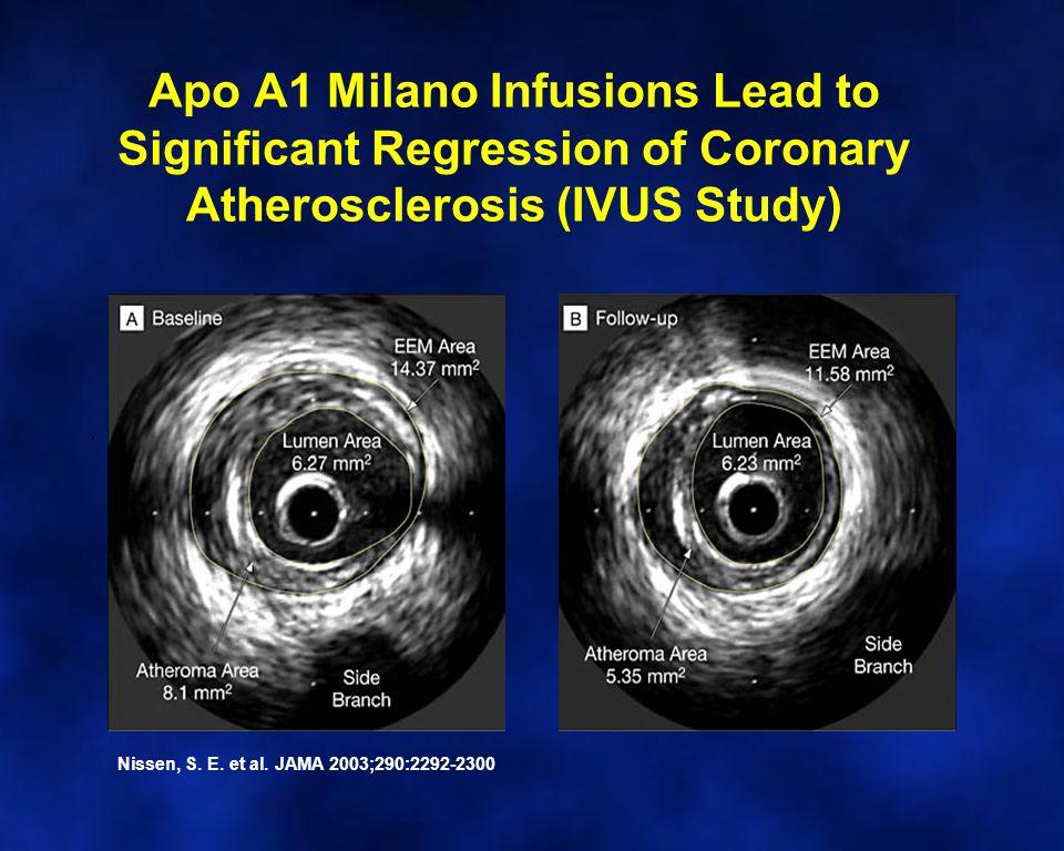 Apo A1 Milano Infusions Lead to Significant Regression of Coronary Atherosclerosis (IVUS Study). Nissen, S. E. et al. JAMA 2003;290:2292-2300