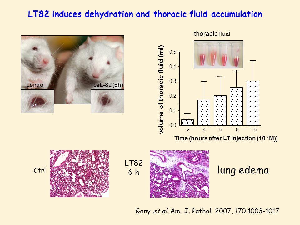 controlTcsL-82 (6h) thoracic fluid LT82 induces dehydration and thoracic fluid accumulation Geny et al.