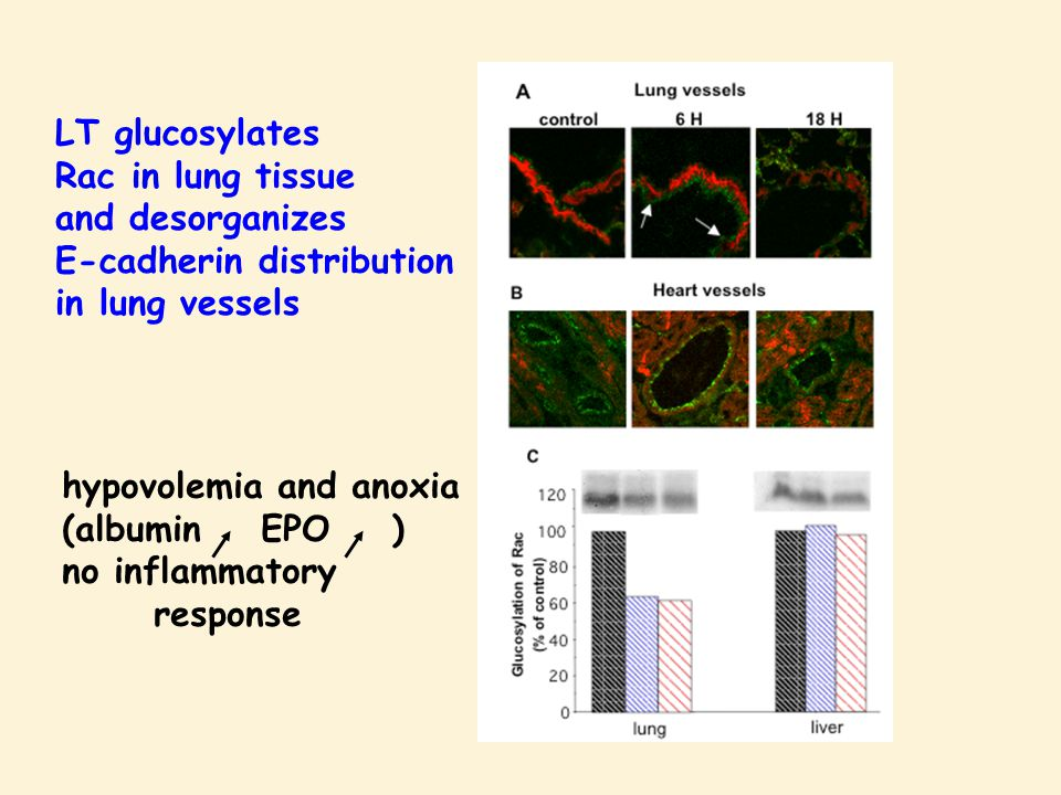 LT glucosylates Rac in lung tissue and desorganizes E-cadherin distribution in lung vessels hypovolemia and anoxia (albumin EPO ) no inflammatory response