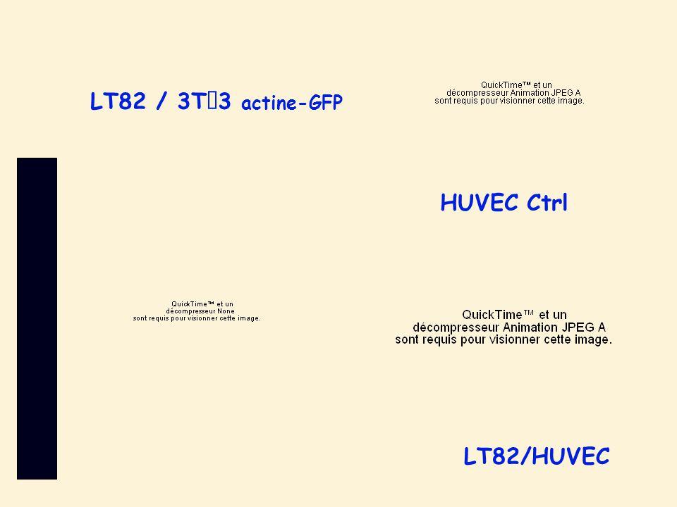 LT82/HUVEC LT82 / 3T3 actine-GFP HUVEC Ctrl