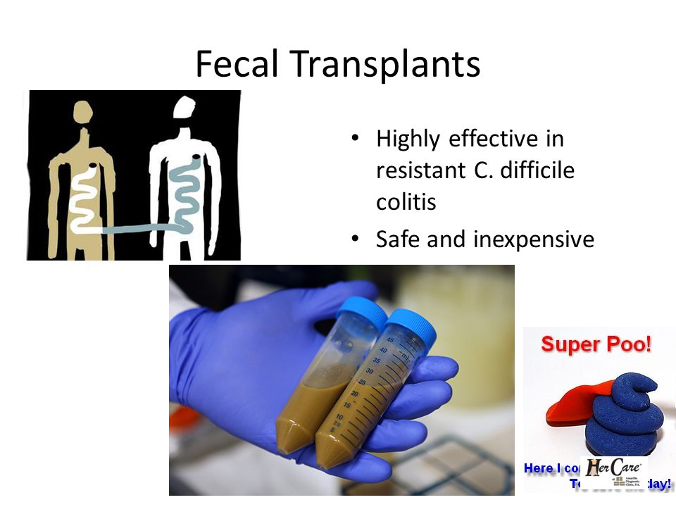 Fecal Transplants Highly effective in resistant C. difficile colitis Safe and inexpensive