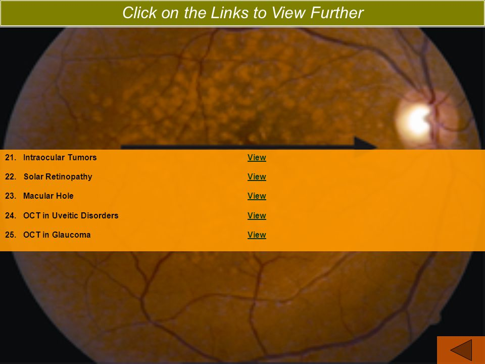 21.Intraocular TumorsViewView 22.Solar RetinopathyViewView 23.Macular HoleViewView 24.OCT in Uveitic DisordersViewView 25.OCT in GlaucomaViewView Click on the Links to View Further