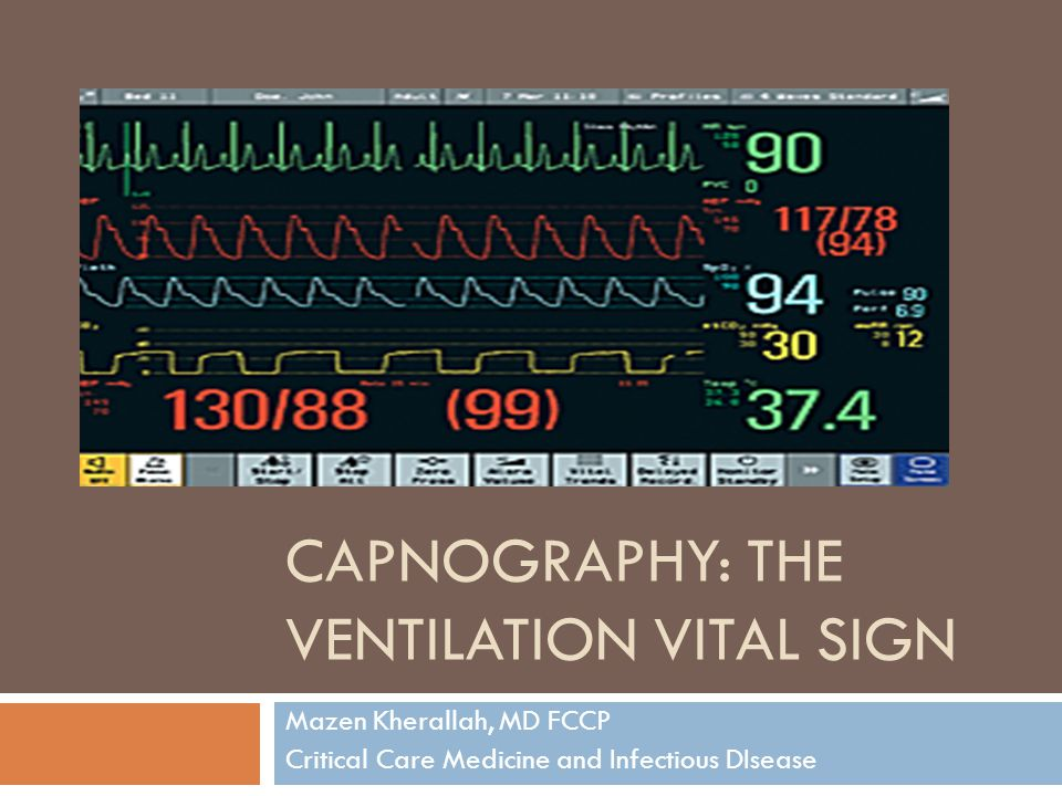 Interpretation of ETCO2  Excellent correlation between ETCO2 and cardiac output when cardiac output is low.