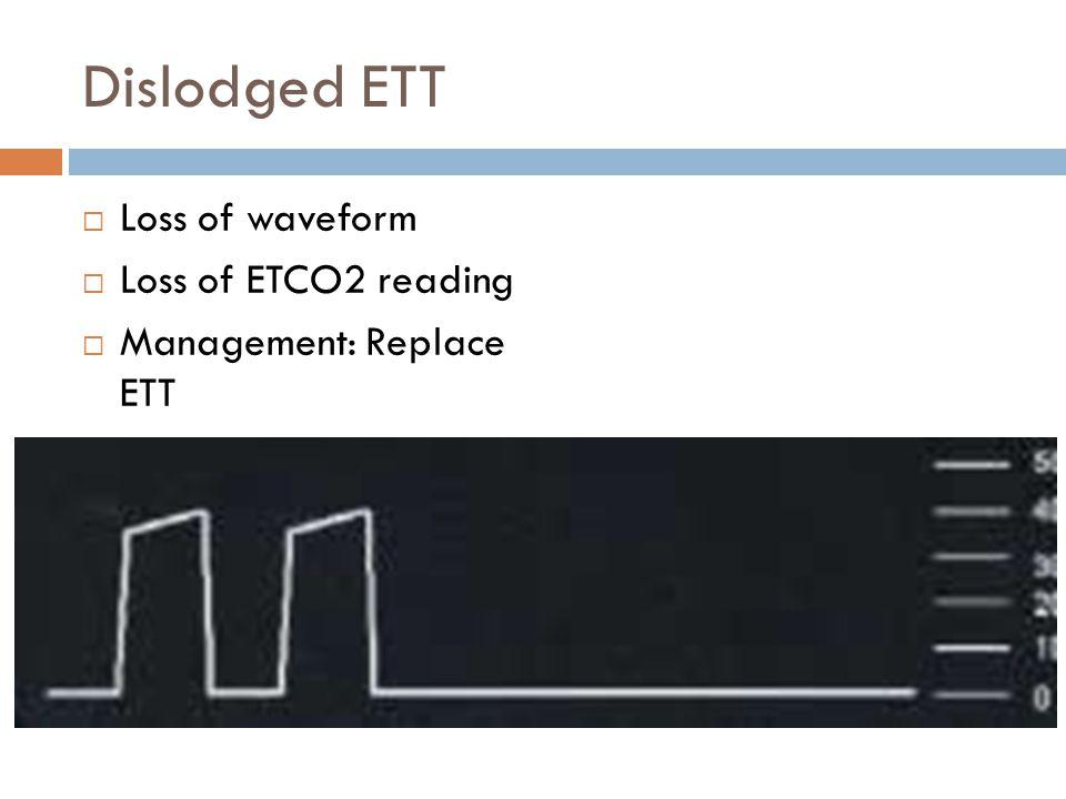 Dislodged ETT  Loss of waveform  Loss of ETCO2 reading  Management: Replace ETT
