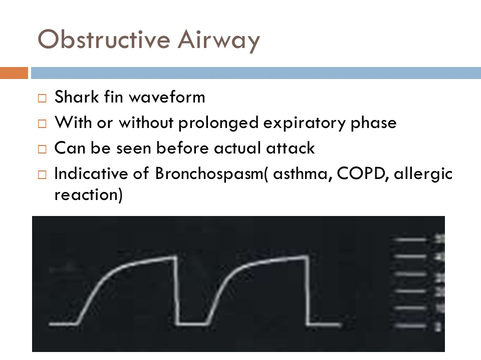 Obstructive Airway  Shark fin waveform  With or without prolonged expiratory phase  Can be seen before actual attack  Indicative of Bronchospasm( asthma, COPD, allergic reaction)