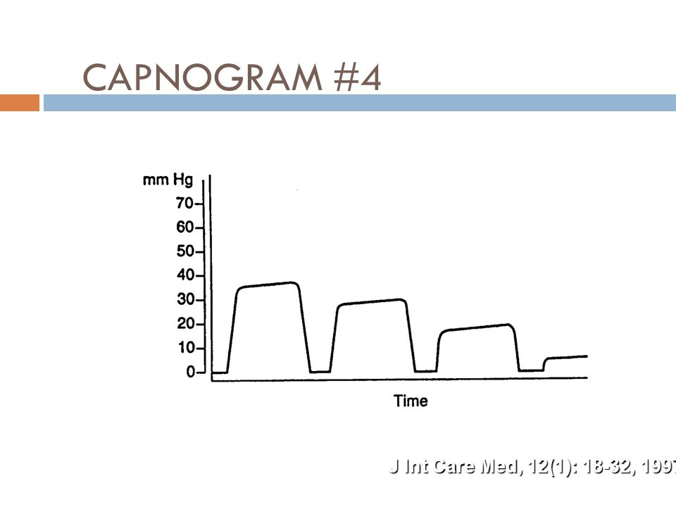CAPNOGRAM #4 J Int Care Med, 12(1): 18-32, 1997
