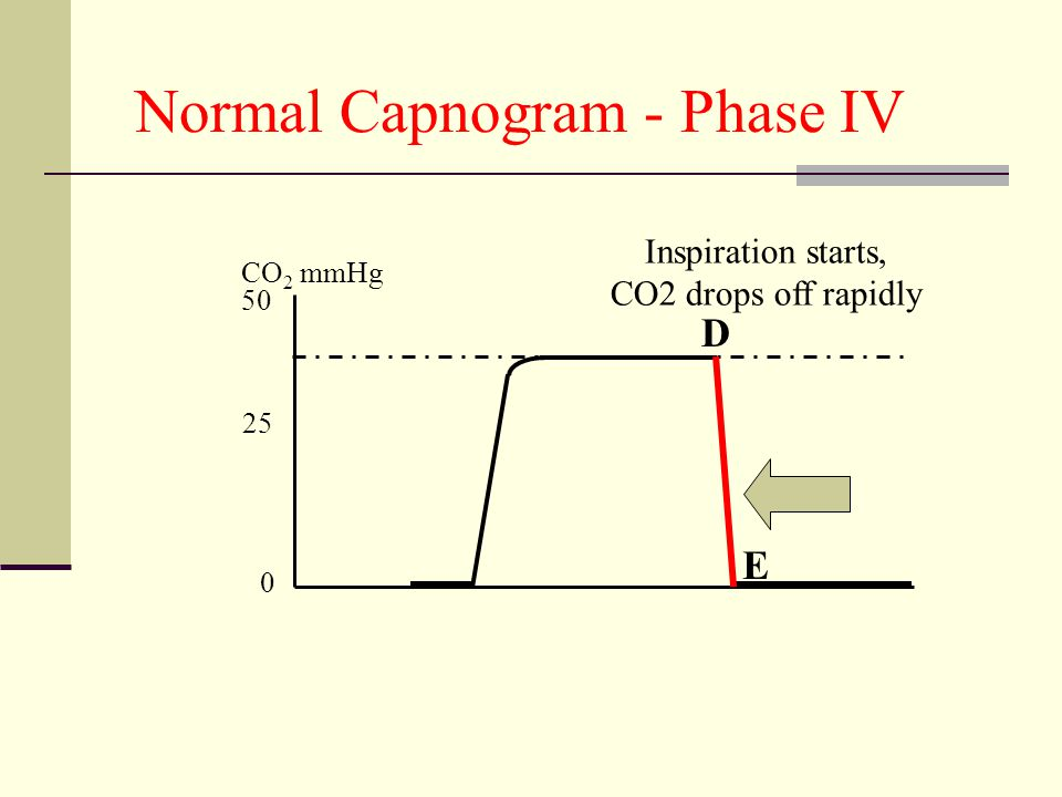 Normal Capnogram - Phase IV 50 0 25 CO 2 mmHg Inspiration starts, CO2 drops off rapidly E D