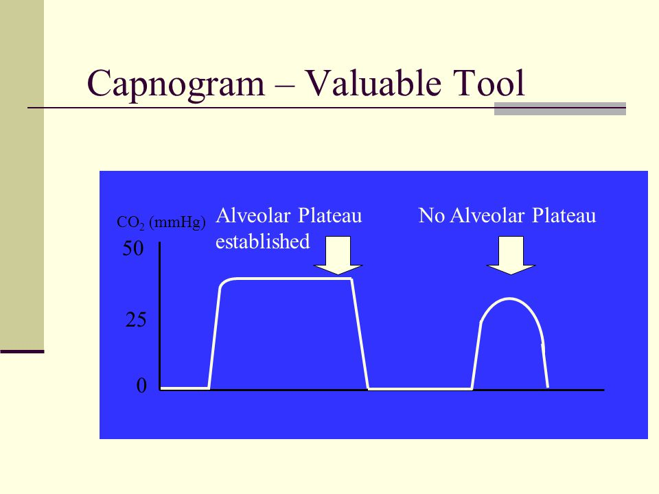 Capnogram – Valuable Tool CO 2 (mmHg) 0 25 50 Alveolar Plateau established No Alveolar Plateau
