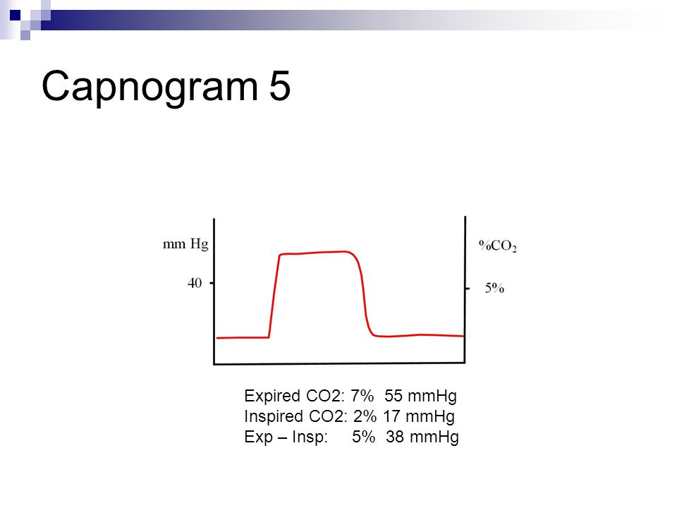 Capnogram 5 Expired CO2: 7% 55 mmHg Inspired CO2: 2% 17 mmHg Exp – Insp: 5% 38 mmHg