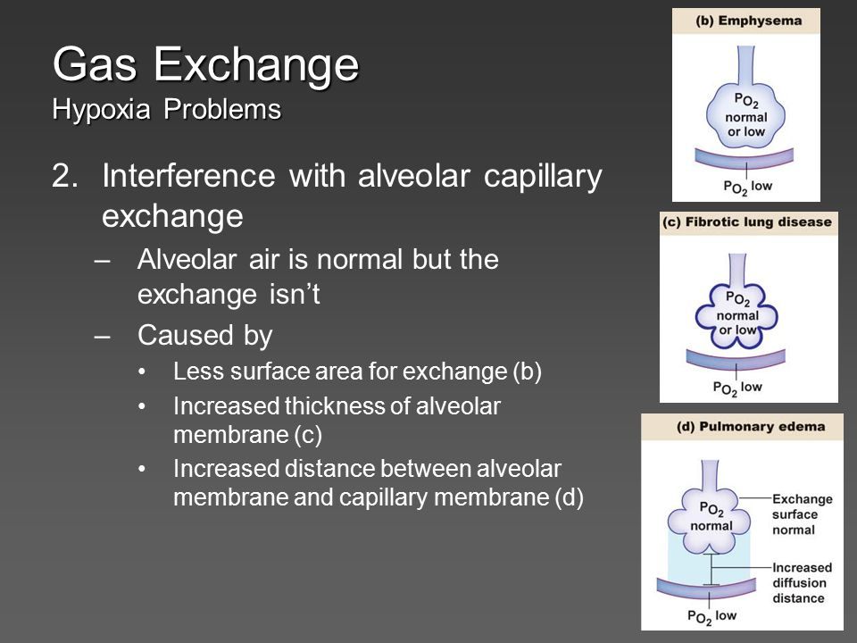 Gas Exchange Hypoxia Problems 2.Interference with alveolar capillary exchange –Alveolar air is normal but the exchange isn't –Caused by Less surface a
