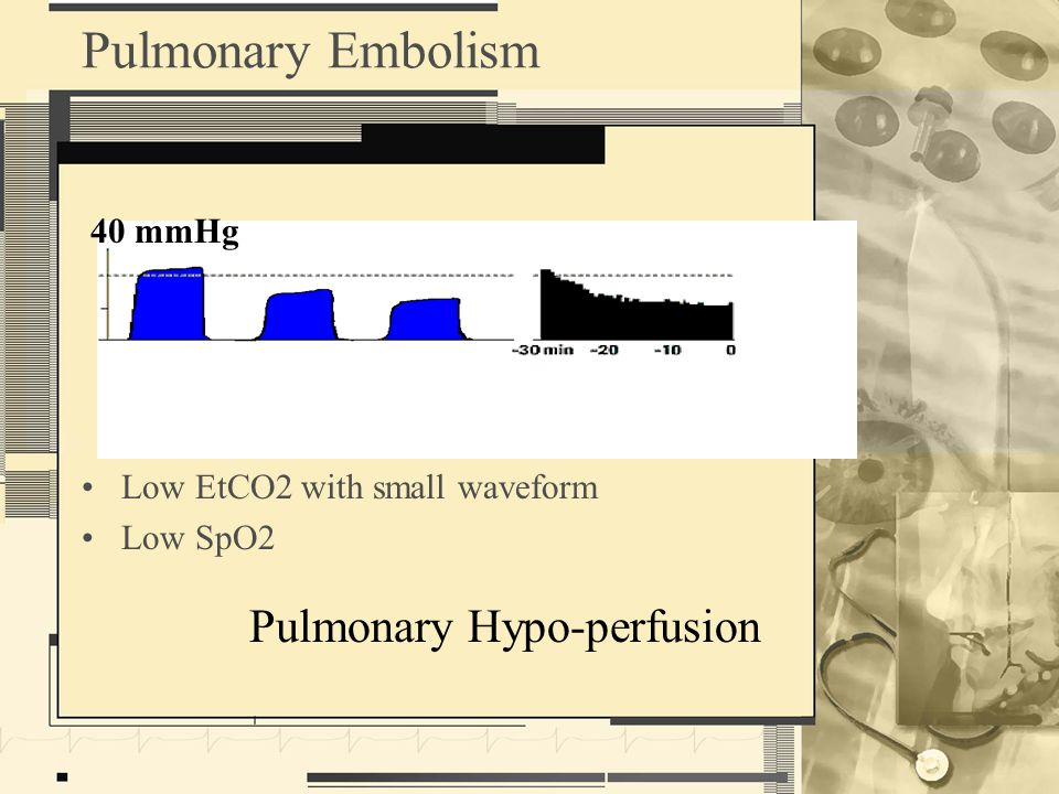 Pulmonary Embolism Pulmonary Hypo-perfusion 40 mmHg Low EtCO2 with small waveform Low SpO2