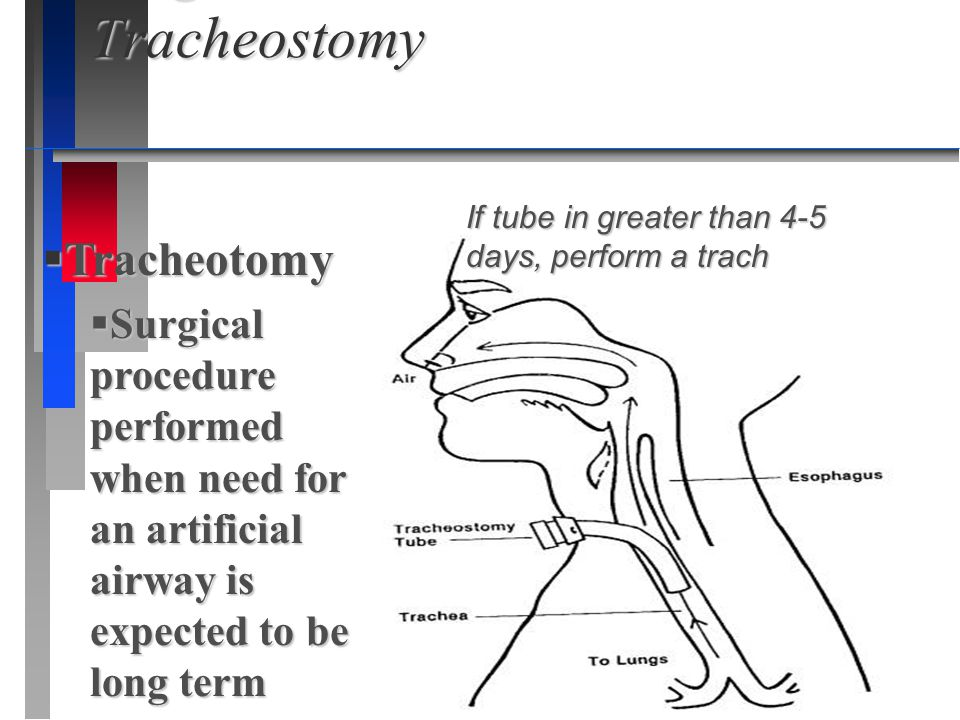 Surgical Intervention- Tracheostomy Surgical Intervention- Tracheostomy  Tracheotomy  Surgical procedure performed when need for an artificial airwa