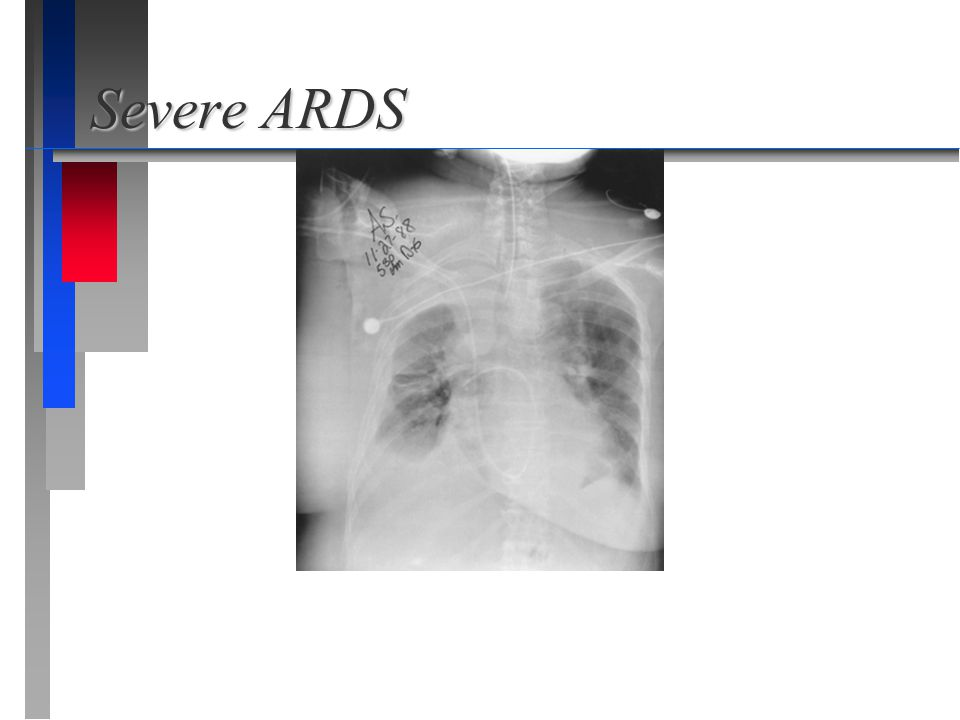 Severe ARDS