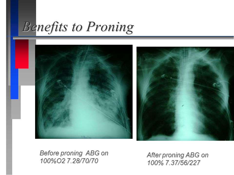 Benefits to Proning Before proning ABG on 100%O2 7.28/70/70 After proning ABG on 100% 7.37/56/227