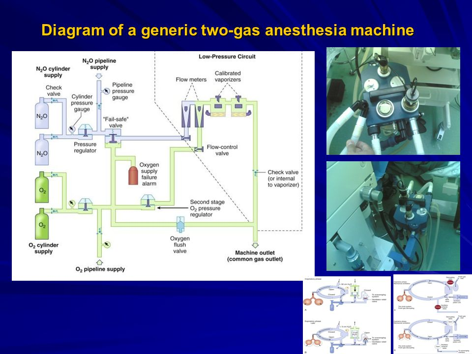 Diagram of a generic two-gas anesthesia machine Diagram of a generic two-gas anesthesia machine